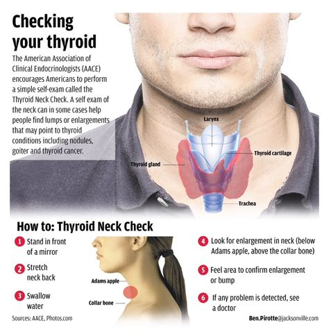 Does Detox Hurt Thyroid by Thyroid Issues Check Out Your Really Yes