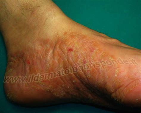 puntini in testa malattie piede di interesse dermatologico unghie e