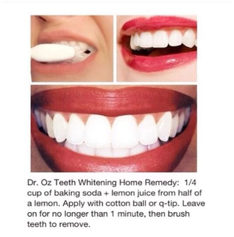 home teeth whitening treatment trusper