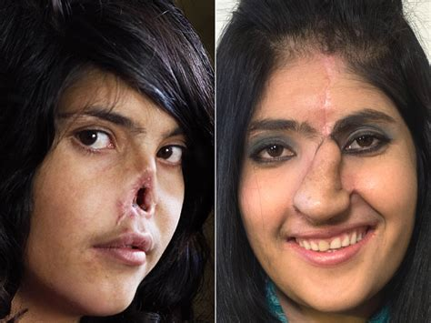 women hair cut by husband i chopped off all my hair never give up afghan teenager who had nose and ears cut
