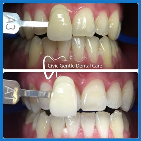 canberra smile gallery smile transformations dentist