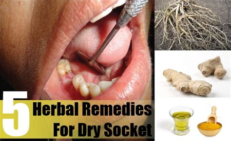 socket herbal remedies treatments and cures