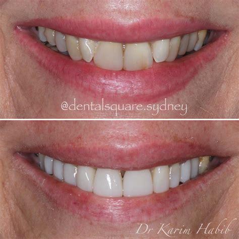 11 best porcelain veneers images porcelain veneers sydney best composite dental veneers