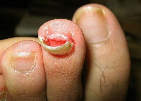 Toe Nail Care by Toenail Falling Causes Treatment Home Remedies Pics