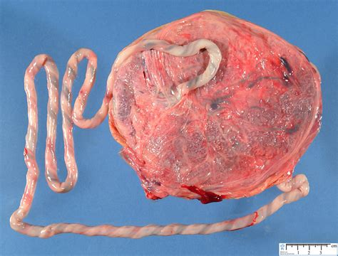 umbilical cord umbilical cord length anomalies humpath human pathology