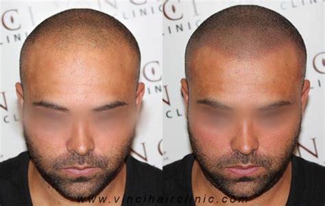 scalp micropigmentation in pakistan 17 best scalp micropigmentation images on pinterest