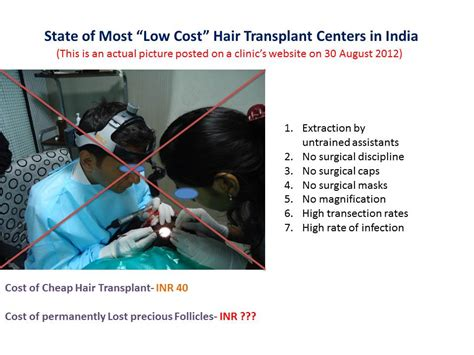 hair transplant cost in tianjin china lost cost lowcost your partner alyx vance sniping