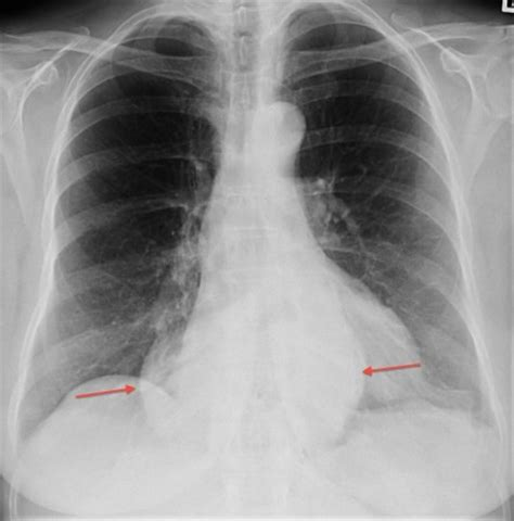 hiatus hernia radiology  st vincents university hospital