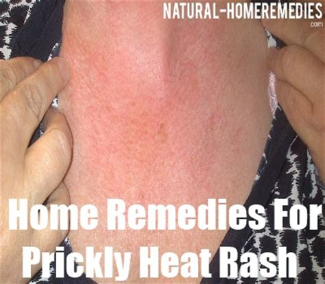 cures for skin rash breeds picture