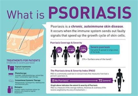 psoriasis light therapy near me psoriasis natural treatment blog what is psoriasis what