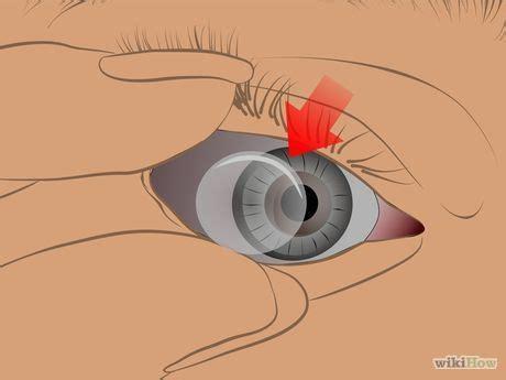 remove stuck contact lenses | lenses