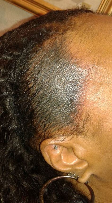 tattoo hairline 6 black with long hair