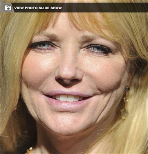 chris evert plastic surgery cheryl tiegs plastic surgery before and after nose job