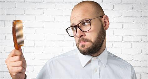 male pattern baldness   treatment atoz hairstyles