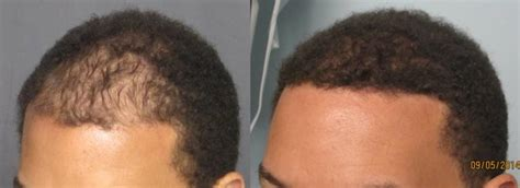 dr yates fue cost per graft fue hair transplant los angeles dr sean behnam