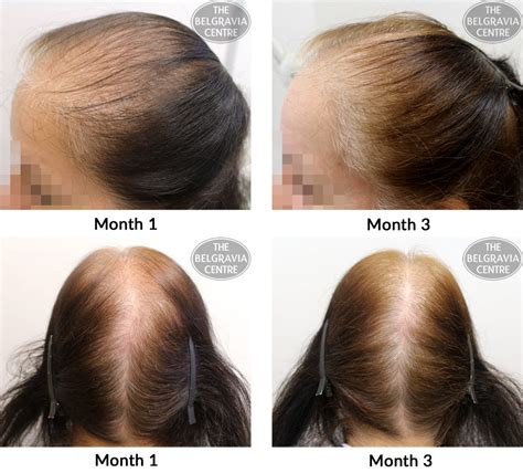 female pattern hair loss during pregnancy belgravia centre blog female hair loss category