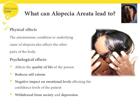 alopecia areata causes hair loss taking away your confidence fear not
