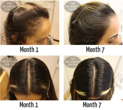female pattern hair loss minoxidil just after 6 months of treatment my scalp looks full
