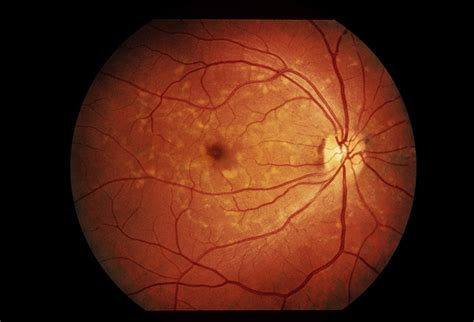 macular pattern dystrophy the retina reference reticular pattern dystrophy retina image bank