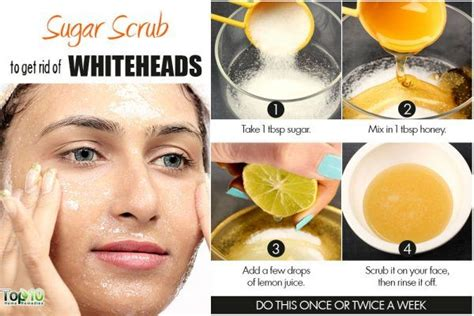 home remedies for whiteheads top 10 home remedies