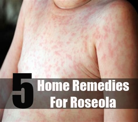 pictures of roseola rash in children 8 easy and beneficial ways to cure roseola naturally