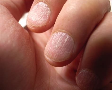 split nail how to get rid of split nails getting rid of split nails