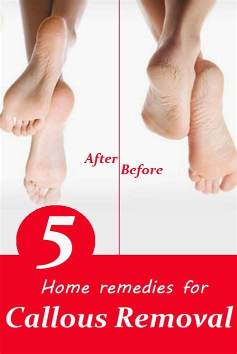 17 best ideas about callous remover 2017 on