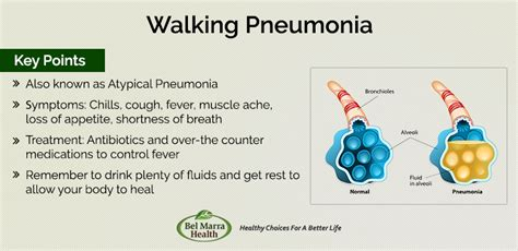home remedies for walking pneumonia walking pneumonia who is at risk how common is atypical