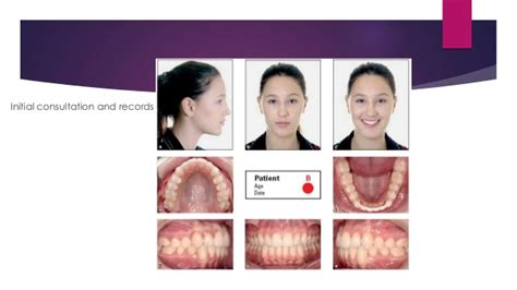 Invisalign Invisalign Photo Template