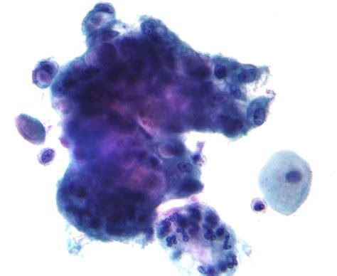 pap test metaplasia fitxer adenocarcinoma on pap test 1 jpg viquip 232 dia l