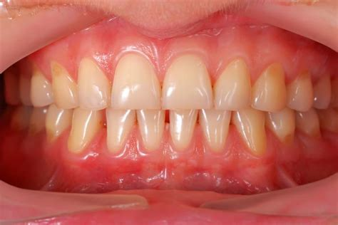 Receding gums: Causes, effects, and treatment