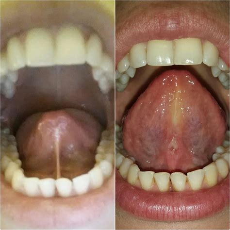 17 best images about tongue tie on posts
