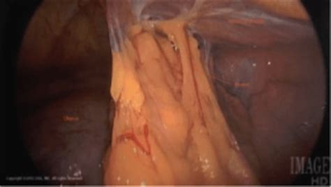 bowel injury during cesarean section resection of pelvic adhesions bladder adhesions cigc