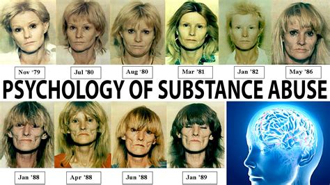 How Many Drinks Detoxed Person Before Physical Dependence by General Psychology Effects Of Substance Abuse