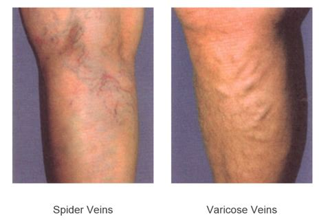 Blood Clot In Leg Treatment At Home by Treatment For Blood Clot In Leg Reasons That Causes Blood