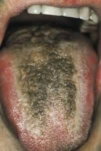 mycose sur la langue
