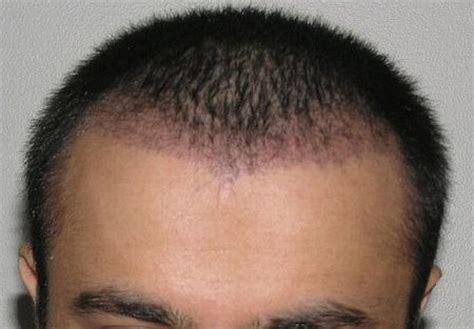hair transplant month by month photos one month post op