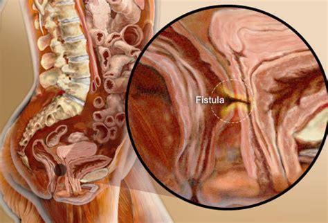 deepest vaginea ibd pictures crohn s ulcerative colitis symptoms causes