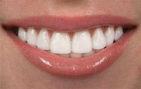A Lovely Picture Until The Smile by Porselen Diş Kaplama Fiyatları