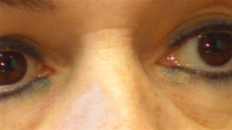 tattoo eyeliner gone wrong i team permanent makeup wrong kptm