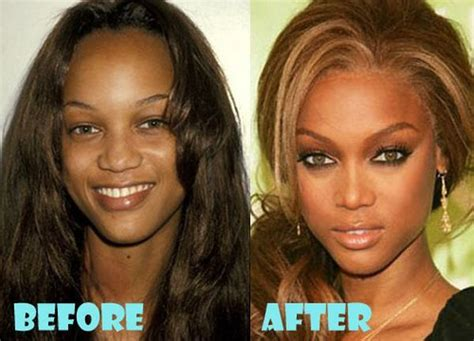 Did Banks Liposuction by 714 Best Before And After Images On
