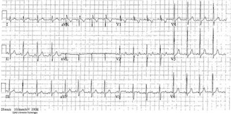 ecg of the week: ecg of the week 19th march 2012