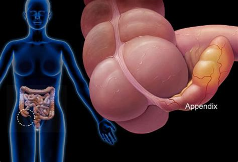 pelvic area pictures pictures of the most common causes of pelvic pain cysts