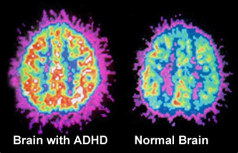 the inventive mind the adhd learning model book 1 books neurofeedback eeg biofeedback and add adhd treatment in
