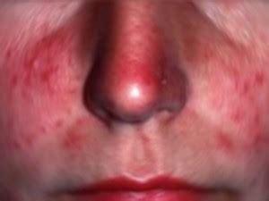 herpes naso interno un uomo soffre di un forte prurito al naso va dal medico