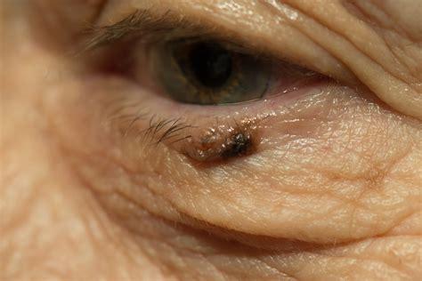 eyelid tumor tumor eyelid tumor