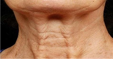 Saggy Solutions by Wrinkled Skin On Neck 17 Best Images About Wrinkles On