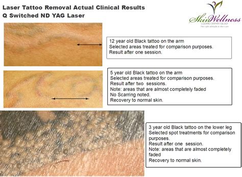 yag laser tattoo removal before and after laser removal q switched ndyag