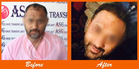 ravi shastari hair transplant hair transplant before after pictures