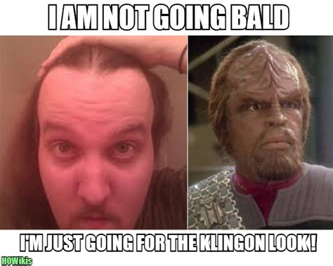 Receding Hairline Meme - receding hairline meme memes